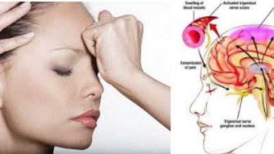 Migren Nedir, Nasıl Tedavi Edilir ? Migren Tedavisi